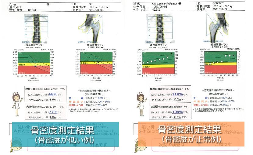 骨密度測定結果の一例